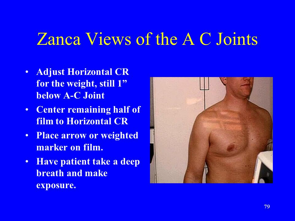 "79 Zanca Views of the A C Joints Adjust Horizontal CR for the weight, still 1"" below A-C Joint Center remaining half of film to Horizontal CR Place ar"