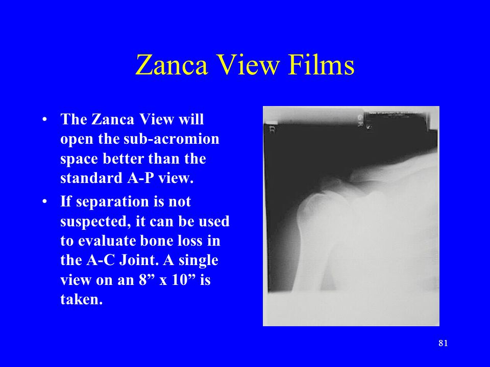 81 Zanca View Films The Zanca View will open the sub-acromion space better than the standard A-P view. If separation is not suspected, it can be used