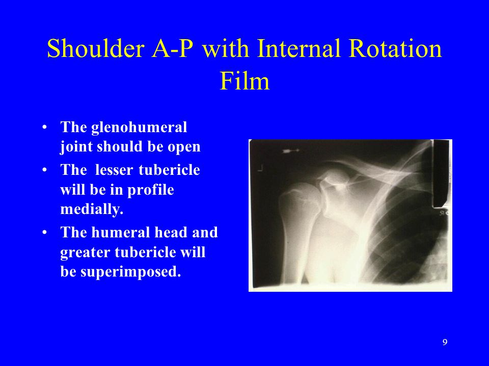 30 Shoulder Outlet View The true Outlet View will allow evaluation of the subacromion space for the evaluation of impingement syndrome.
