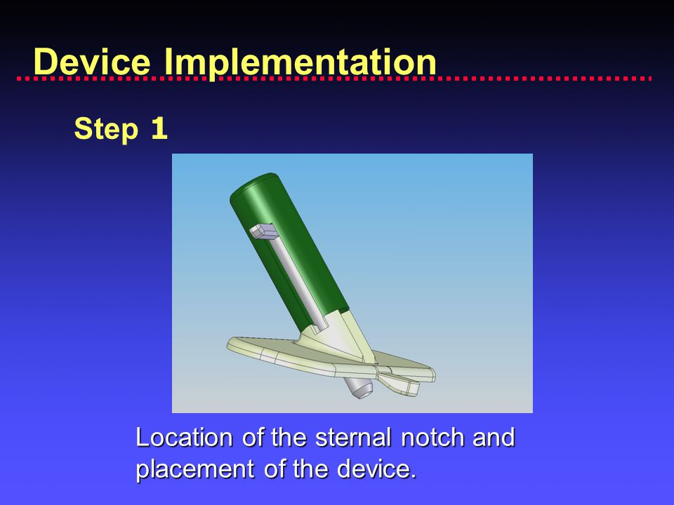 Device Implementation Step 1 Location of the sternal notch and placement of the device.