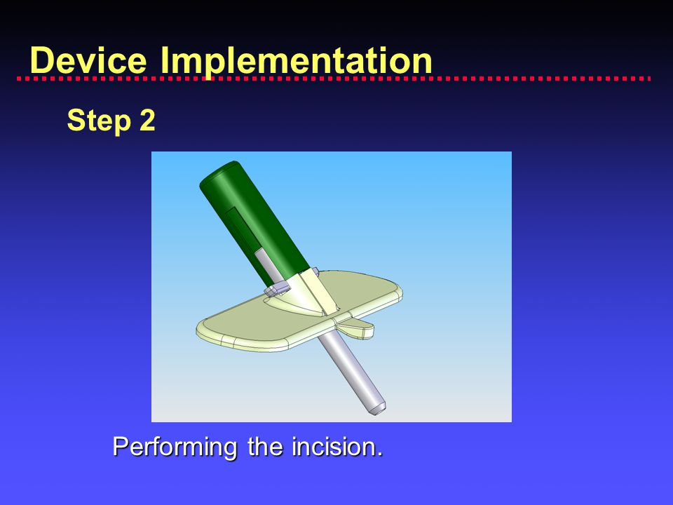 Device Implementation Step 2 Performing the incision.