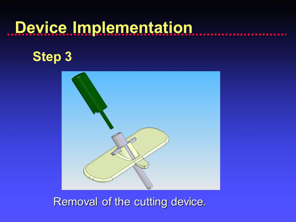 Device Implementation Step 3 Removal of the cutting device.
