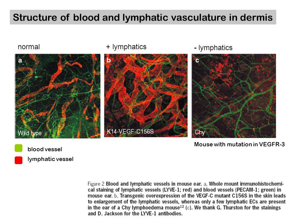 Structure of blood and lymphatic vasculature in dermis normal+ lymphatics - lymphatics Mouse with mutation in VEGFR-3 blood vessel lymphatic vessel