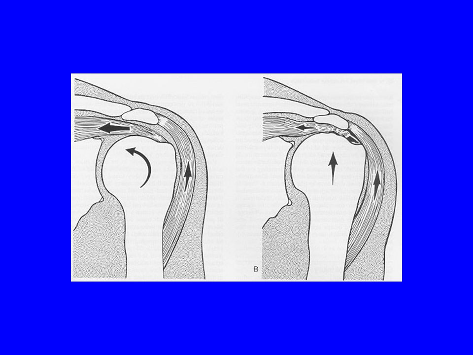 Rotator Cuff Disease Inflammatory Degeneration Partial Tearing Full Thickness Tearing Tears predictably begin in supraspinatus Part of normal aging process