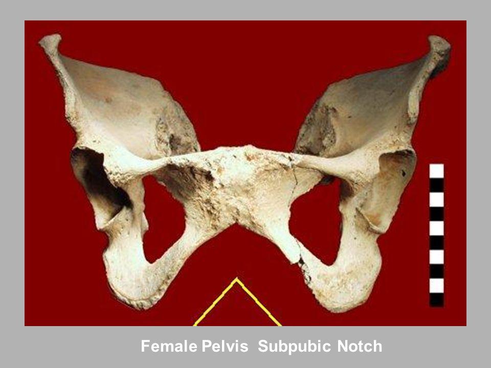 Female Pelvis Subpubic Notch