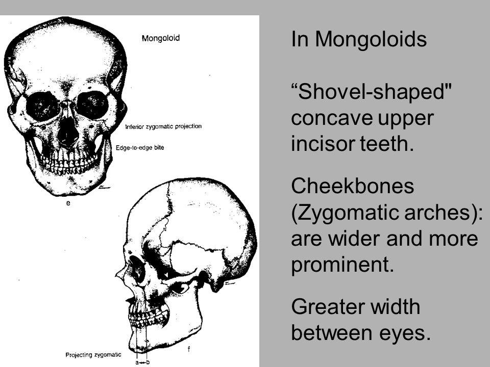 "In Mongoloids ""Shovel-shaped"