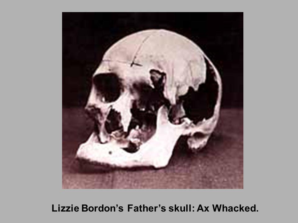 Lizzie Bordon's Father's skull: Ax Whacked.