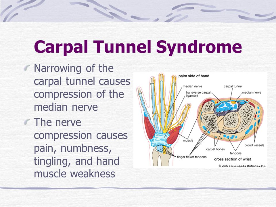 Carpal Tunnel Syndrome Narrowing of the carpal tunnel causes compression of the median nerve The nerve compression causes pain, numbness, tingling, an