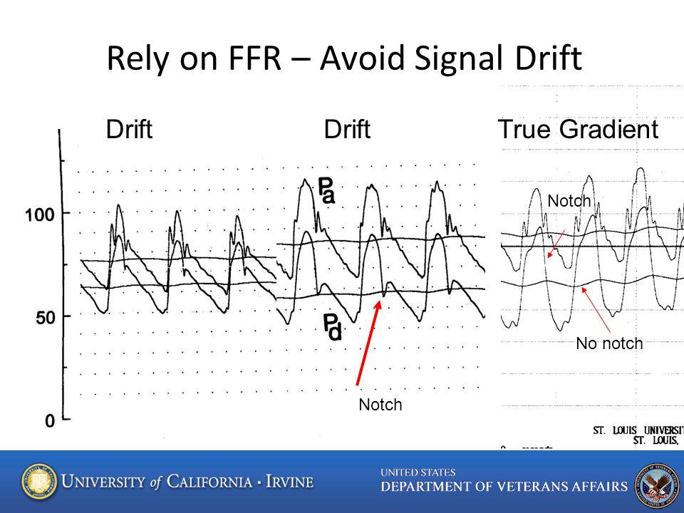 Notch No notch Rely on FFR – Avoid Signal Drift Drift Drift True Gradient