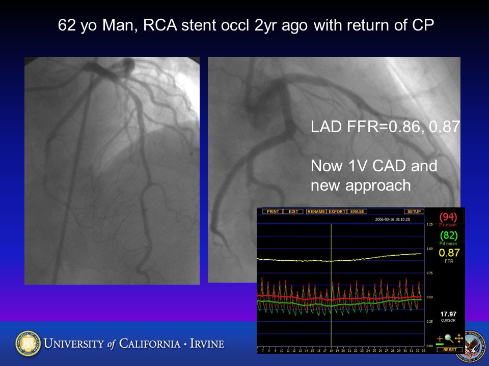 62 yo Man, RCA stent occl 2yr ago with return of CP LAD FFR=0.86, 0.87 Now 1V CAD and new approach