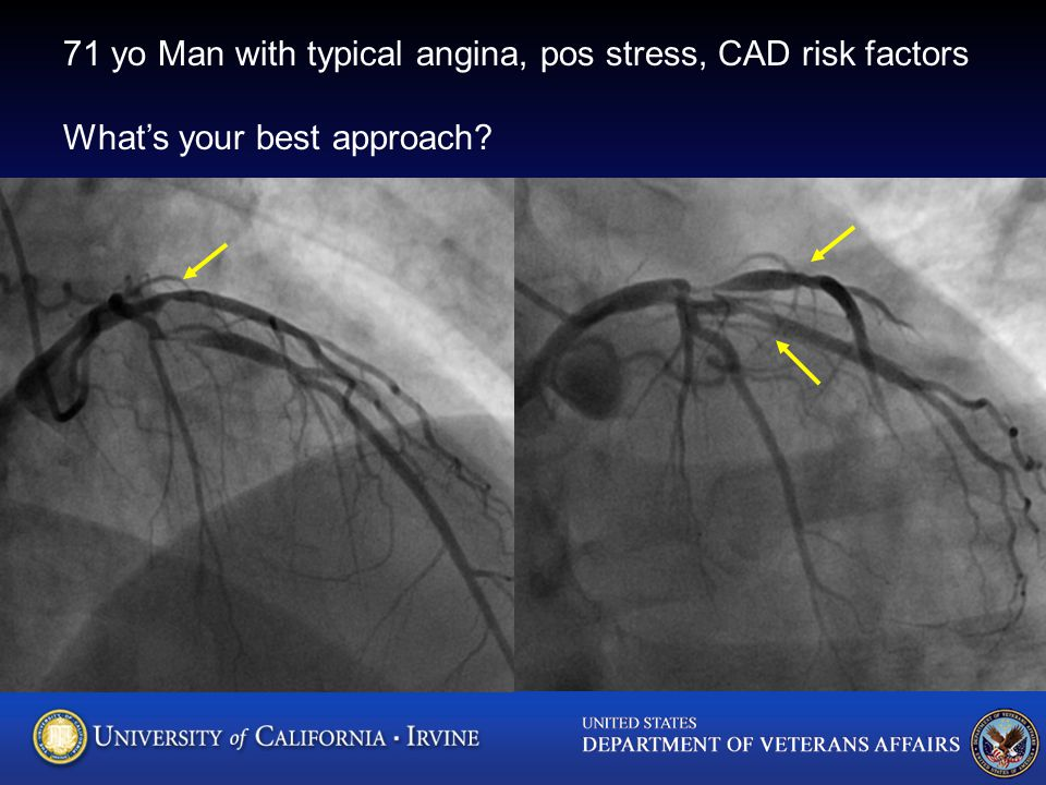 71 yo Man with typical angina, pos stress, CAD risk factors What's your best approach?