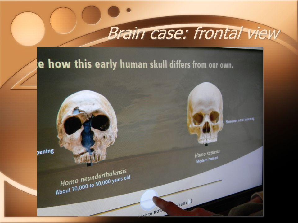 Brain case: frontal view