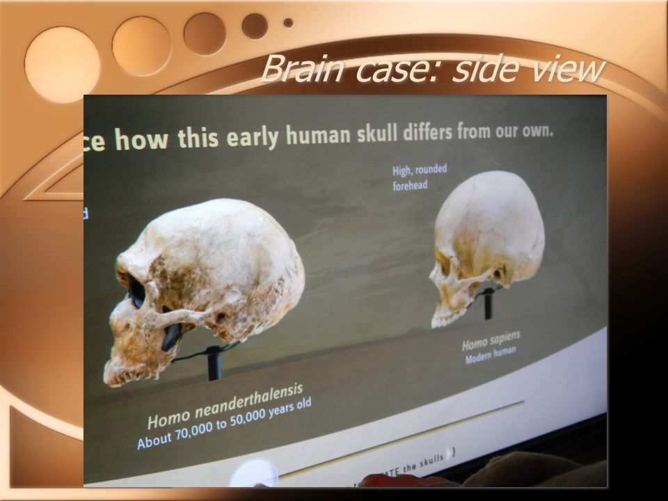Brain case: side view