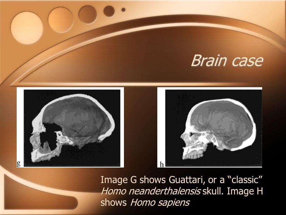 "Brain case Image G shows Guattari, or a ""classic"" Homo neanderthalensis skull. Image H shows Homo sapiens"