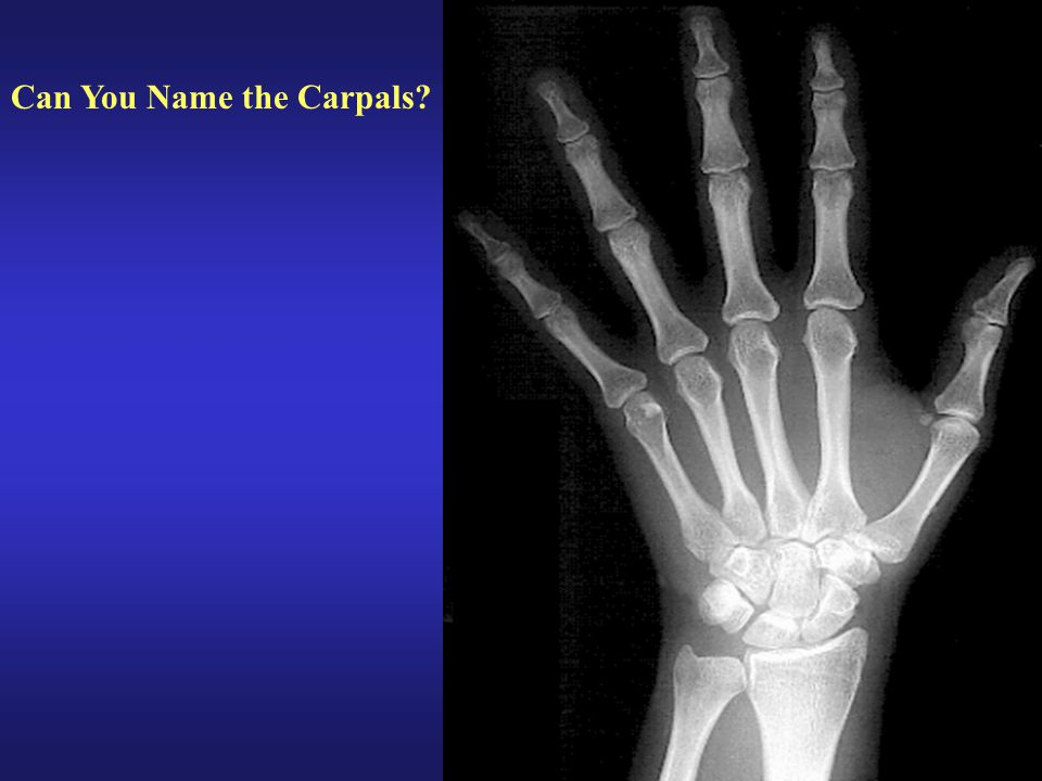 Can You Name the Carpals?