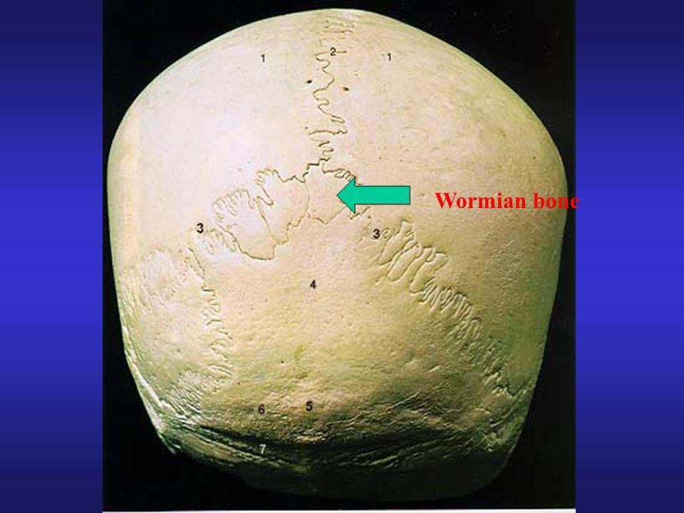 Wormian bone