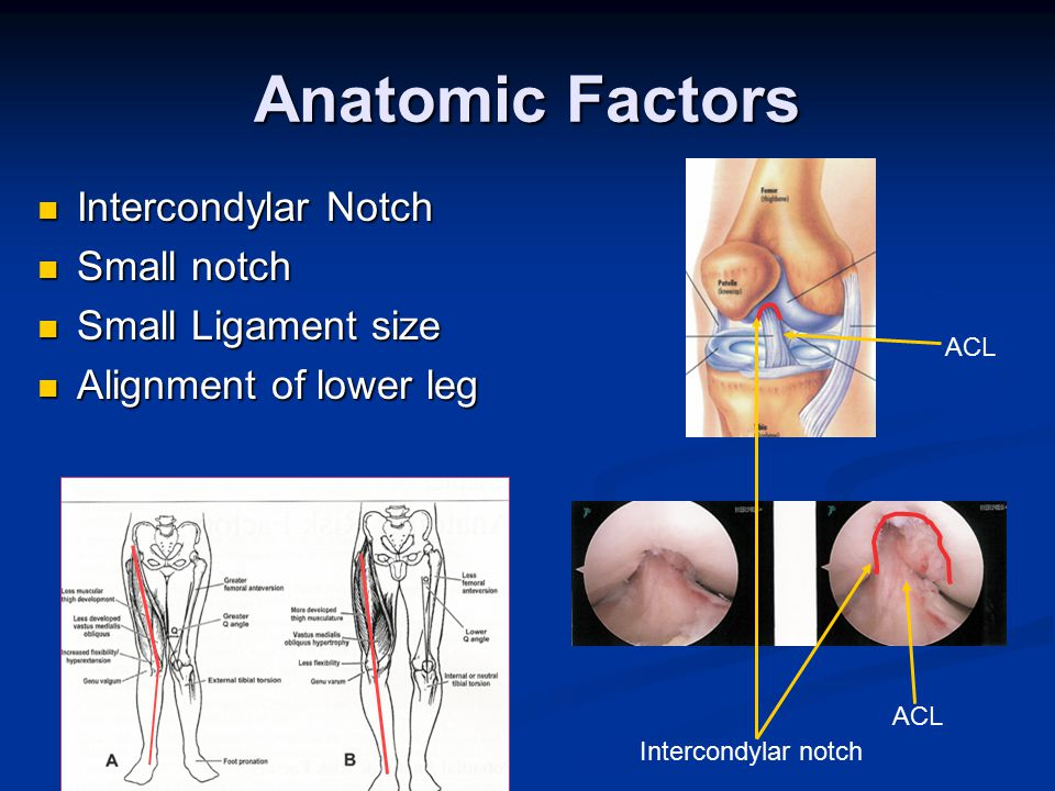 Anatomic Factors Intercondylar Notch Intercondylar Notch Small notch Small notch Small Ligament size Small Ligament size Alignment of lower leg Alignment of lower leg Intercondylar notch ACL