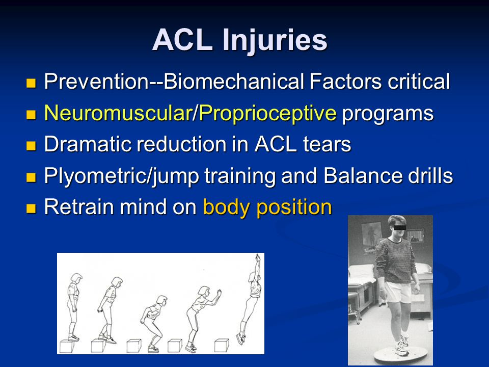 ACL Injuries Prevention--Biomechanical Factors critical Prevention--Biomechanical Factors critical Neuromuscular/Proprioceptive programs Neuromuscular/Proprioceptive programs Dramatic reduction in ACL tears Dramatic reduction in ACL tears Plyometric/jump training and Balance drills Plyometric/jump training and Balance drills Retrain mind on body position Retrain mind on body position