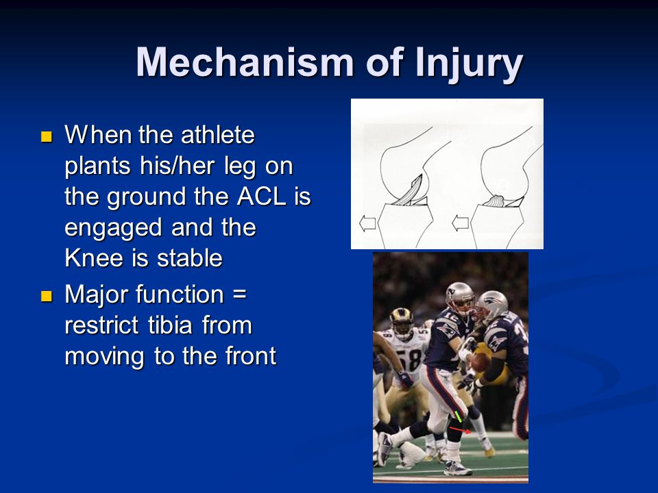 Mechanism of Injury When the athlete plants his/her leg on the ground the ACL is engaged and the Knee is stable When the athlete plants his/her leg on the ground the ACL is engaged and the Knee is stable Major function = restrict tibia from moving to the front Major function = restrict tibia from moving to the front