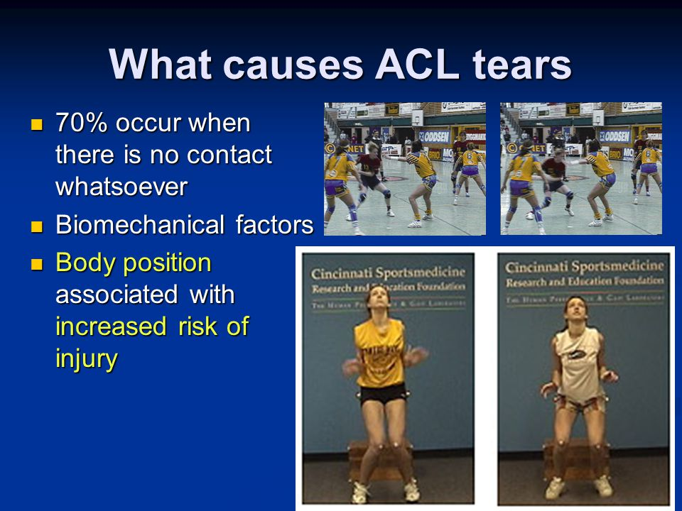 What causes ACL tears 70% occur when there is no contact whatsoever 70% occur when there is no contact whatsoever Biomechanical factors Biomechanical factors Body position associated with increased risk of injury Body position associated with increased risk of injury