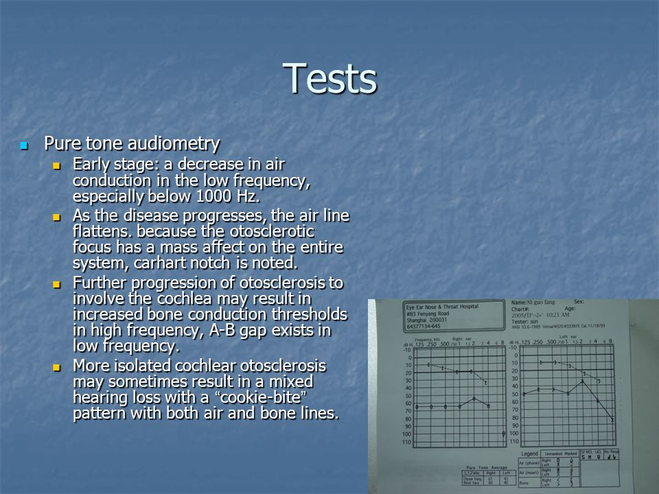 Tests Pure tone audiometry Pure tone audiometry Early stage: a decrease in air conduction in the low frequency, especially below 1000 Hz.