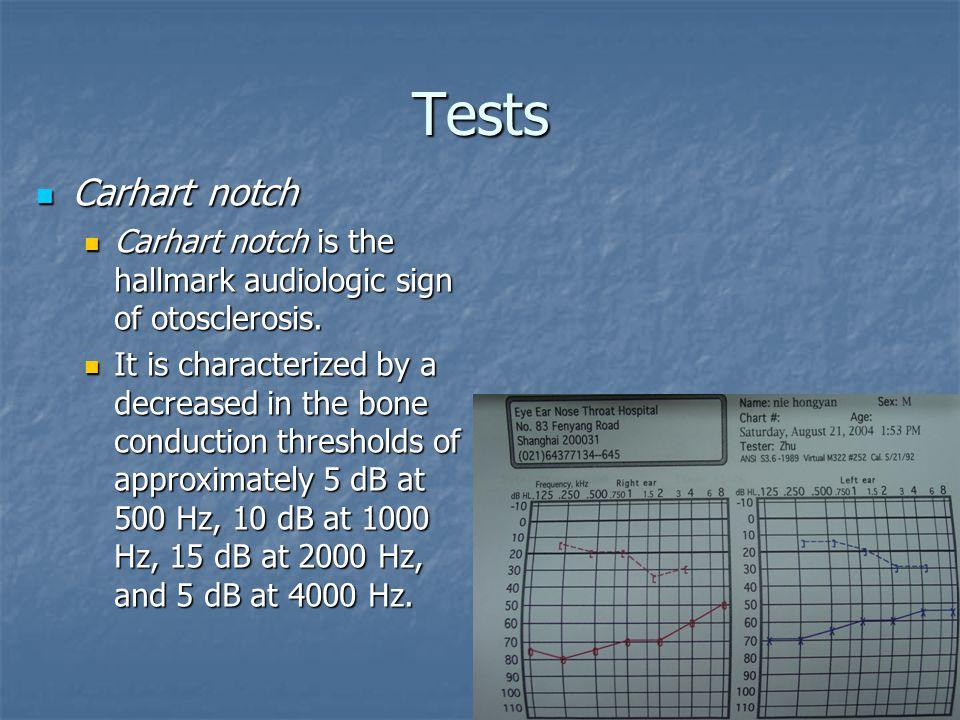 Tests Carhart notch Carhart notch Carhart notch is the hallmark audiologic sign of otosclerosis.