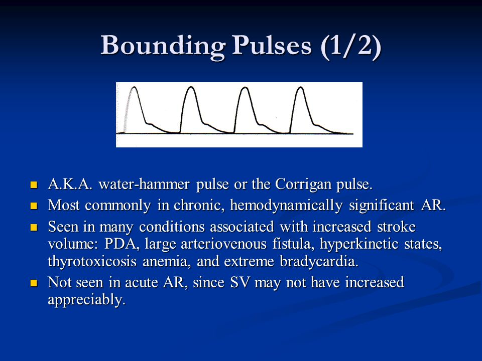 Bounding Pulses (1/2) A.K.A. water-hammer pulse or the Corrigan pulse. A.K.A. water-hammer pulse or the Corrigan pulse. Most commonly in chronic, hemo