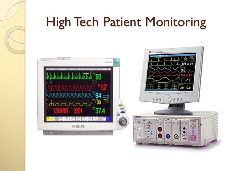 Characteristics of Pressure measurement system Blood pressure monitoring systems are described as underdamped, second order dynamic systems.