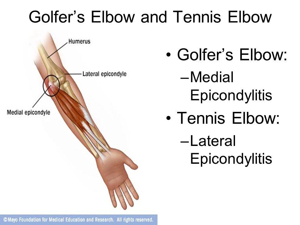 Golfer's Elbow and Tennis Elbow Golfer's Elbow: –Medial Epicondylitis Tennis Elbow: –Lateral Epicondylitis