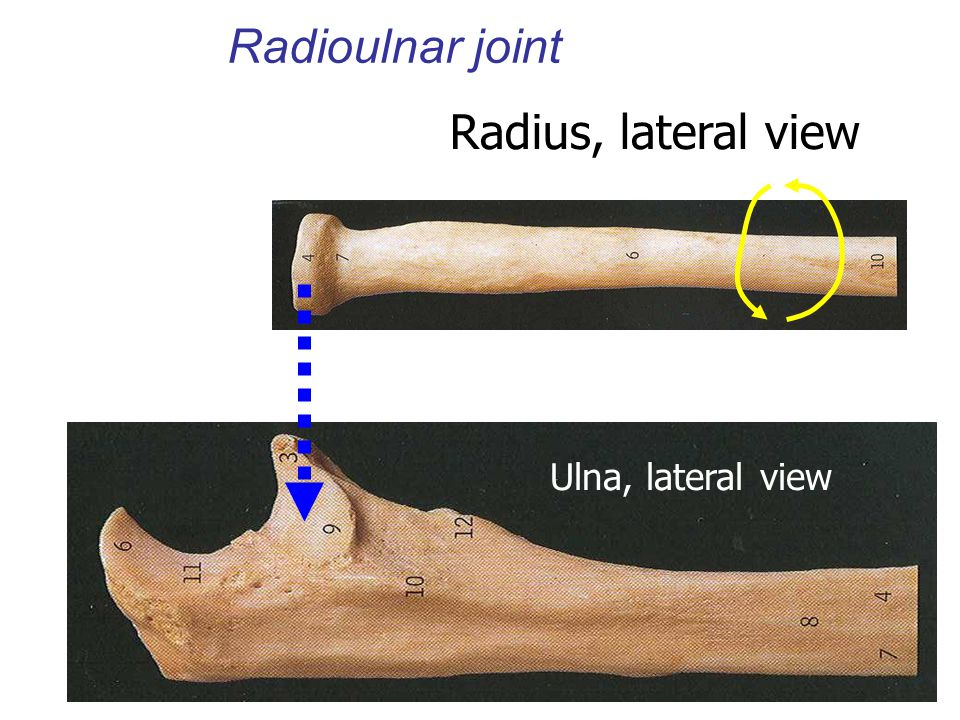 Ulna, lateral view Radius, lateral view Radioulnar joint