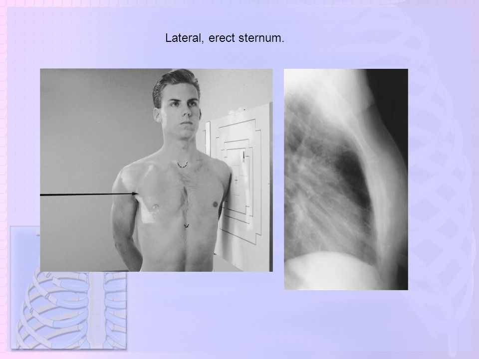 Lateral, erect sternum.