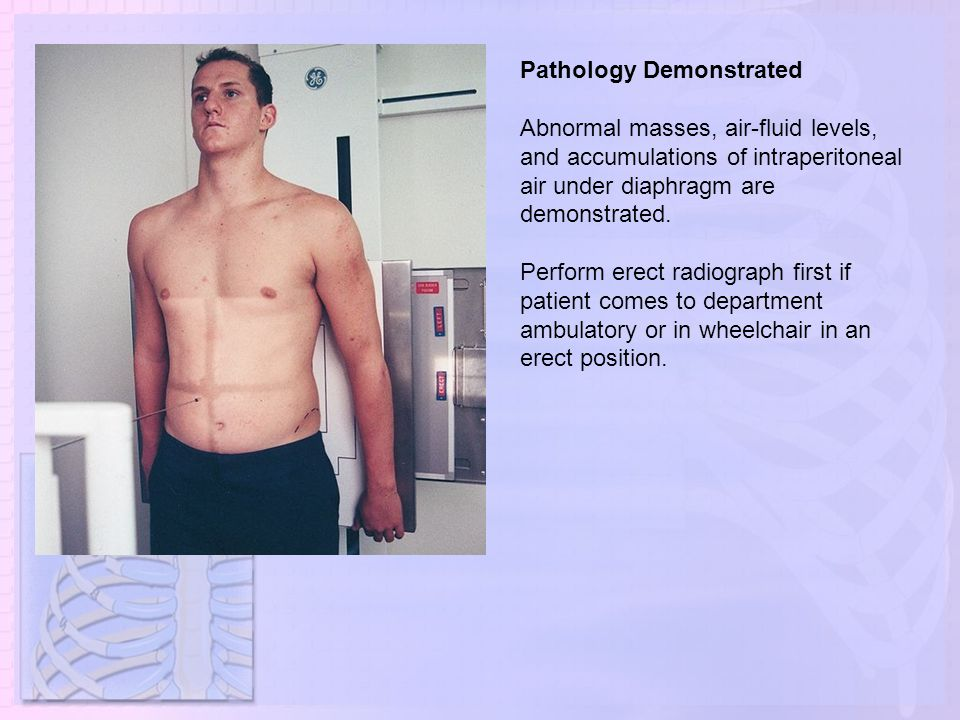 Pathology Demonstrated Abnormal masses, air-fluid levels, and accumulations of intraperitoneal air under diaphragm are demonstrated. Perform erect rad