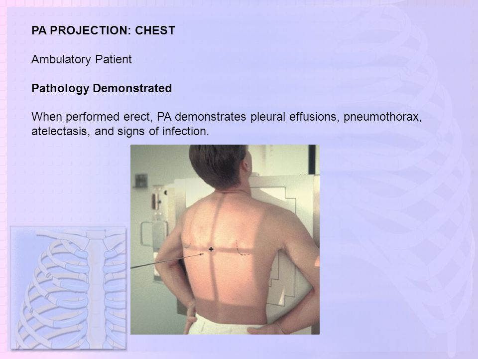 PA PROJECTION: CHEST Ambulatory Patient Pathology Demonstrated When performed erect, PA demonstrates pleural effusions, pneumothorax, atelectasis, and
