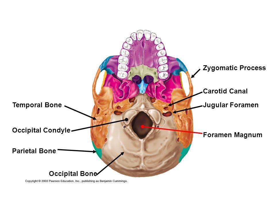 Temporal Bone Parietal Bone Occipital Bone Zygomatic Process Carotid Canal Jugular Foramen Foramen Magnum Occipital Condyle