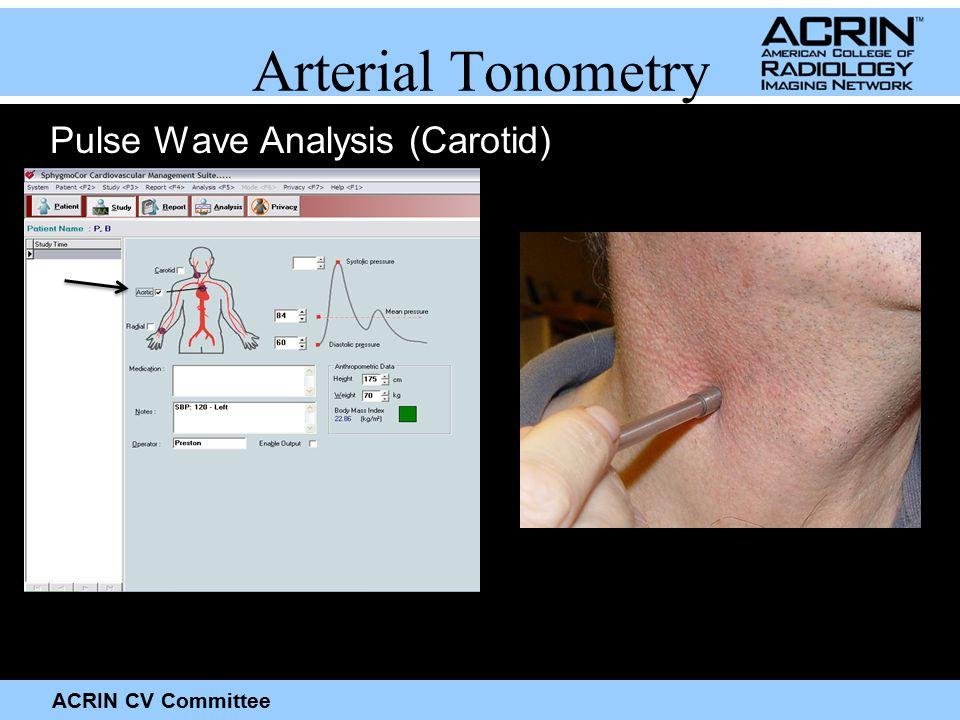 ACRIN CV Committee Arterial Tonometry Pulse Wave Analysis (Carotid)