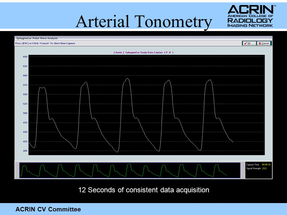 ACRIN CV Committee Arterial Tonometry 12 Seconds of consistent data acquisition
