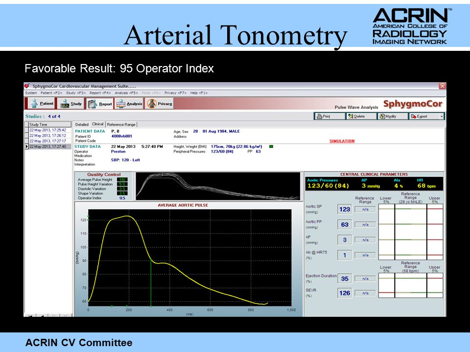 ACRIN CV Committee Arterial Tonometry Favorable Result: 95 Operator Index