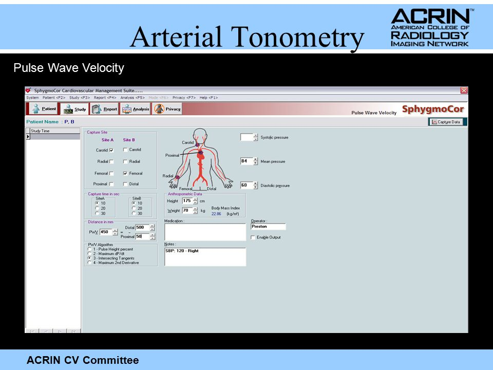 ACRIN CV Committee Arterial Tonometry Pulse Wave Velocity