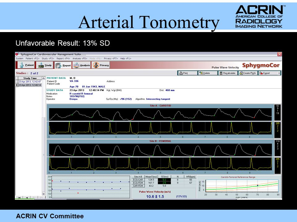 ACRIN CV Committee Arterial Tonometry Unfavorable Result: 13% SD