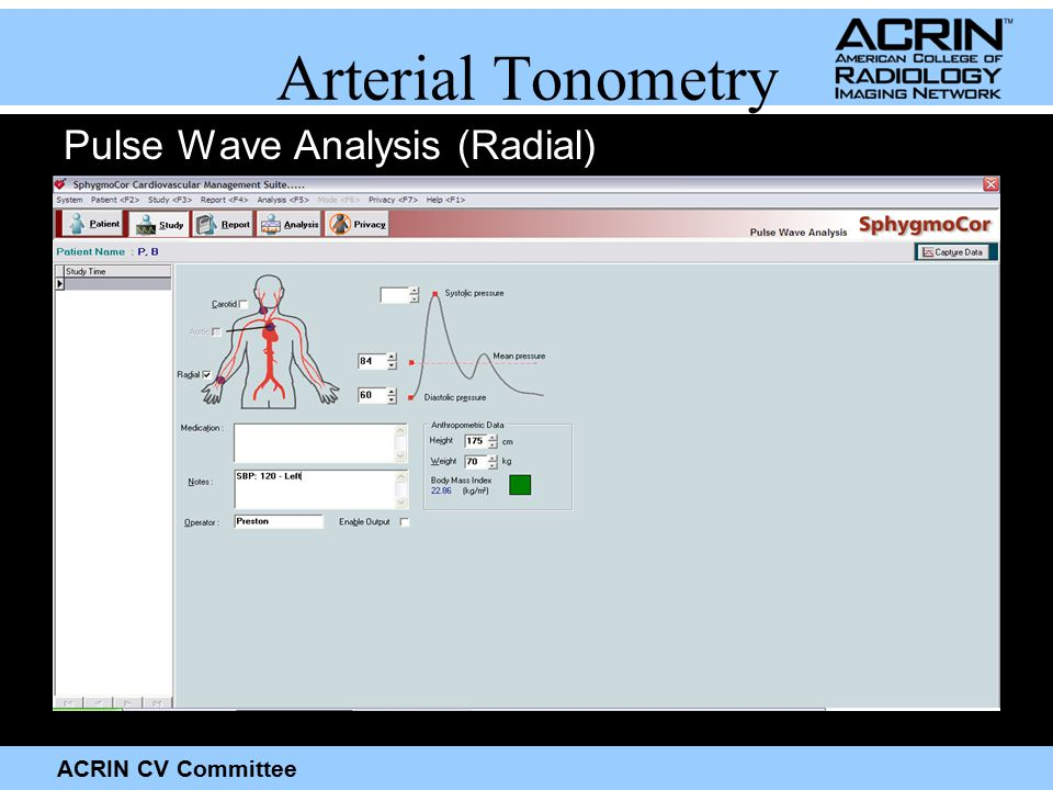 ACRIN CV Committee Arterial Tonometry Pulse Wave Analysis (Radial)