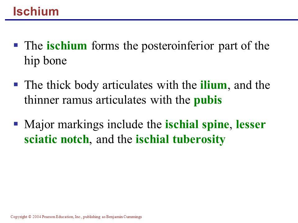 Copyright © 2004 Pearson Education, Inc., publishing as Benjamin Cummings Ischium  The ischium forms the posteroinferior part of the hip bone  The t