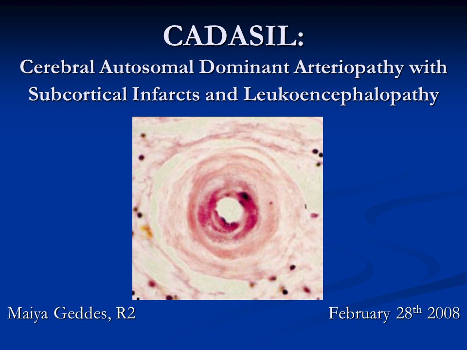 Questions this lecture will tackle 1) When should I suspect CADASIL.