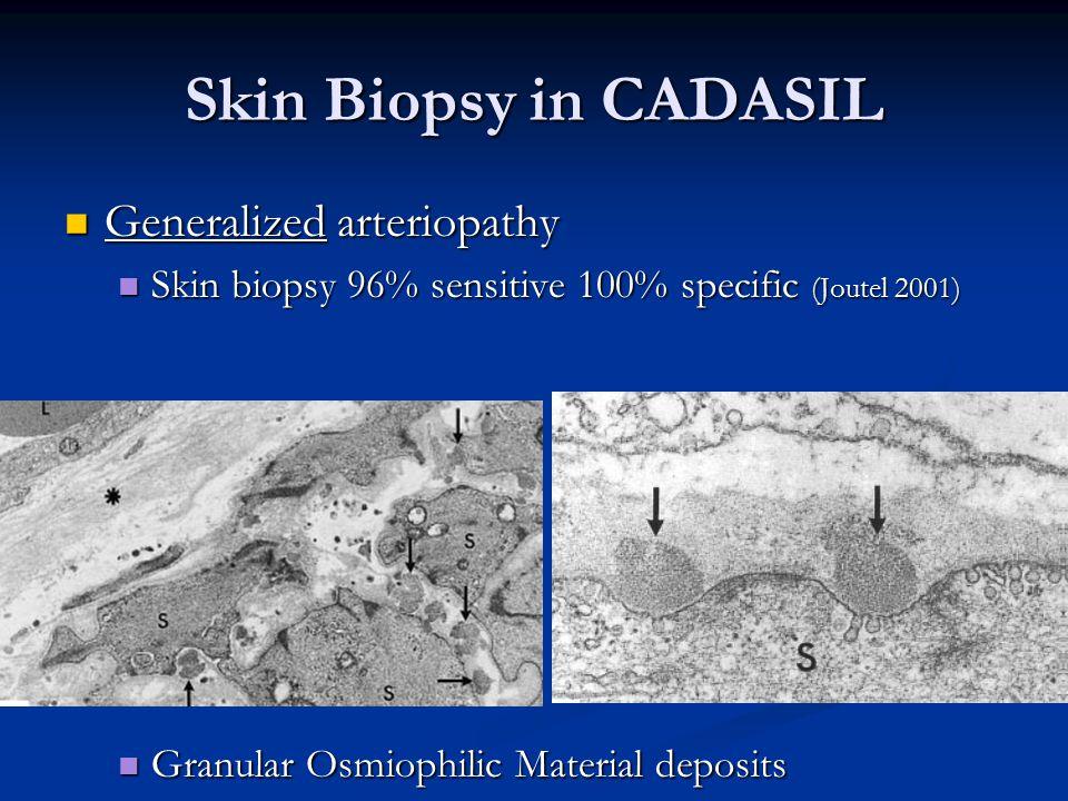 Skin Biopsy in CADASIL Generalized arteriopathy Generalized arteriopathy Skin biopsy 96% sensitive 100% specific (Joutel 2001) Skin biopsy 96% sensitive 100% specific (Joutel 2001) Granular Osmiophilic Material deposits Granular Osmiophilic Material deposits