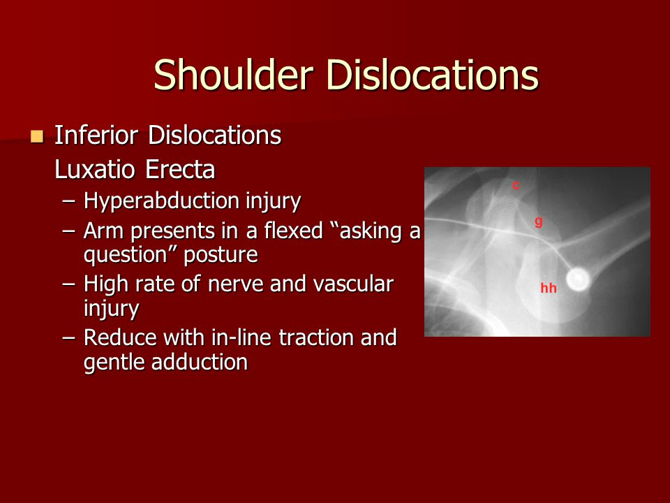 Inferior Dislocations Inferior Dislocations Luxatio Erecta –Hyperabduction injury –Arm presents in a flexed asking a question posture –High rate of nerve and vascular injury –Reduce with in-line traction and gentle adduction Shoulder Dislocations