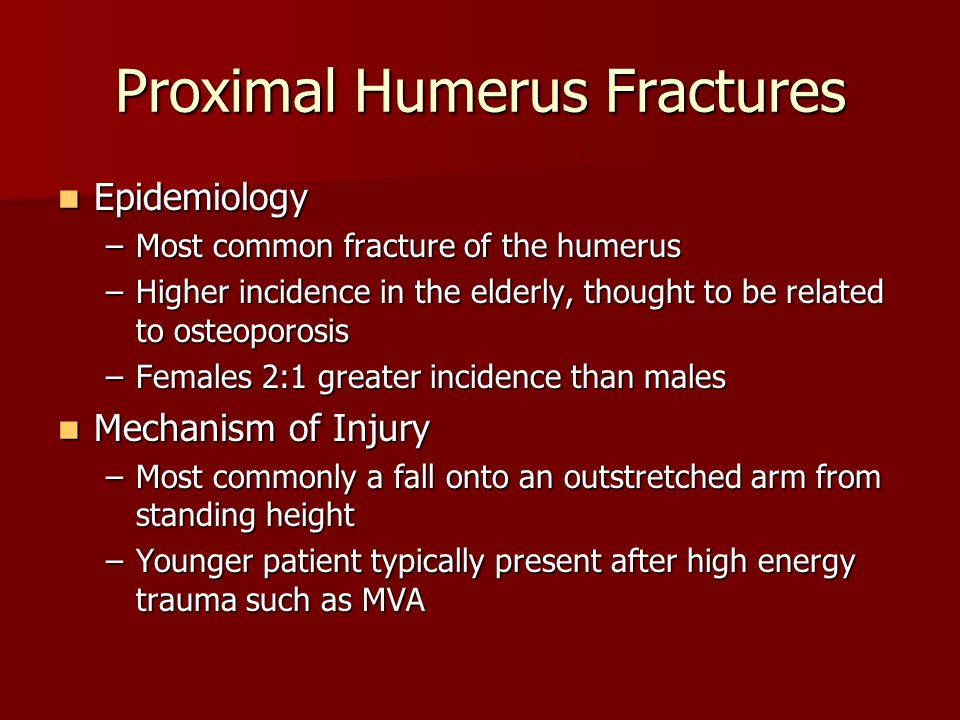 Epidemiology Epidemiology –Most common fracture of the humerus –Higher incidence in the elderly, thought to be related to osteoporosis –Females 2:1 greater incidence than males Mechanism of Injury Mechanism of Injury –Most commonly a fall onto an outstretched arm from standing height –Younger patient typically present after high energy trauma such as MVA