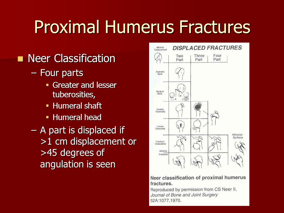 Proximal Humerus Fractures Neer Classification Neer Classification –Four parts  Greater and lesser tuberosities,  Humeral shaft  Humeral head –A part is displaced if >1 cm displacement or >45 degrees of angulation is seen