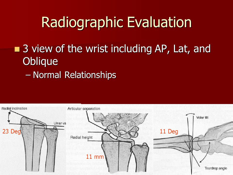 Radiographic Evaluation 3 view of the wrist including AP, Lat, and Oblique 3 view of the wrist including AP, Lat, and Oblique –Normal Relationships 23 Deg 11 mm 11 Deg
