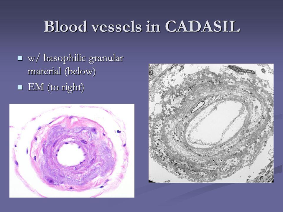 Blood vessels in CADASIL w/ basophilic granular material (below) w/ basophilic granular material (below) EM (to right) EM (to right)