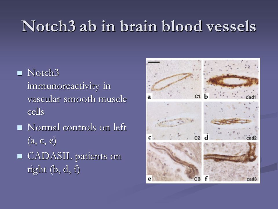 Notch3 ab in brain blood vessels Notch3 immunoreactivity in vascular smooth muscle cells Notch3 immunoreactivity in vascular smooth muscle cells Norma