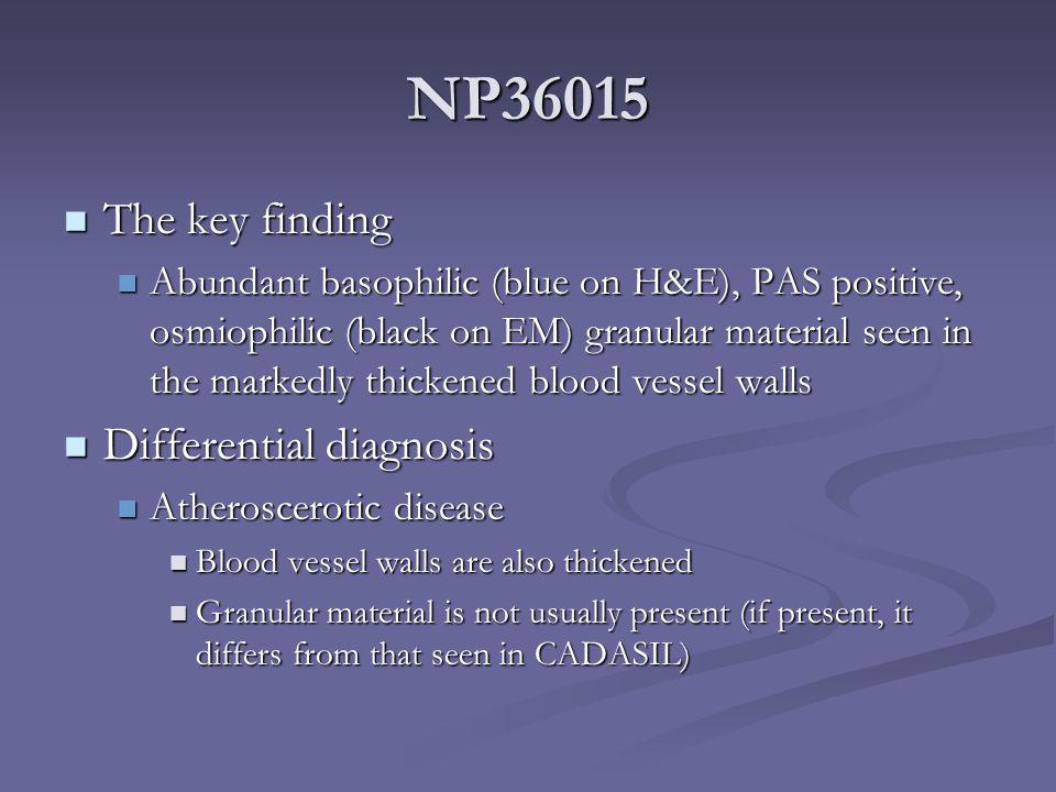 NP36015 The key finding The key finding Abundant basophilic (blue on H&E), PAS positive, osmiophilic (black on EM) granular material seen in the marke